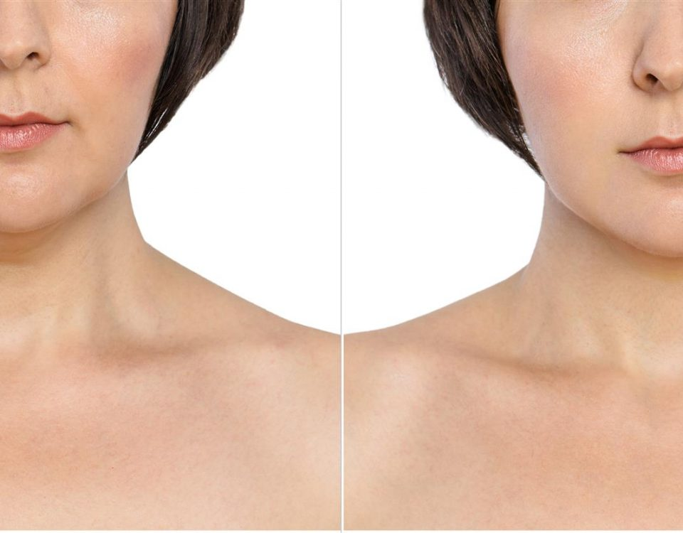 Photo: before and after pictures of chin scuplting