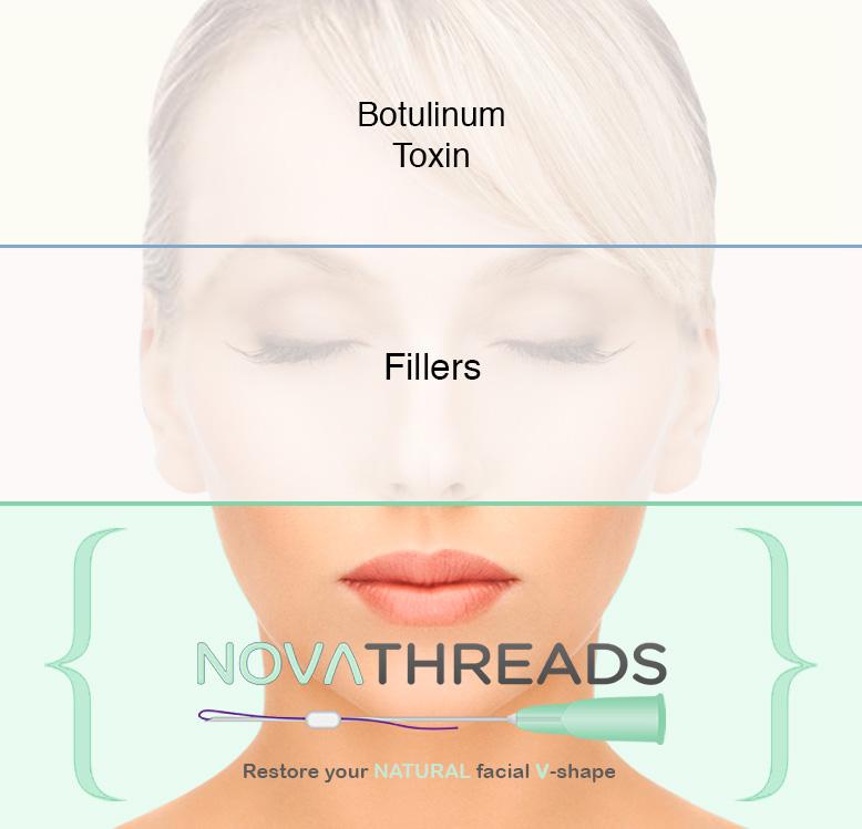 NovaThreads – PDO Thread Lift – Lumina Skin
